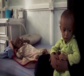 المجاعة الأكثر فتكا خلال 100 عام: 14 مليون شخص معرضون للمجاعة في اليمن إذا استمر القصف السعودي